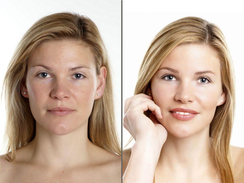 Vorher Nachher Bild einer Frau