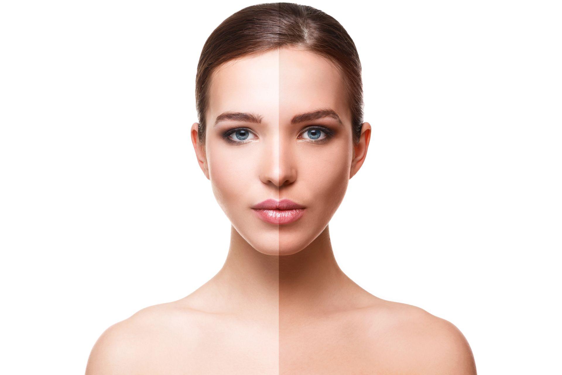 Frau mit zur Hälfte gebräuntem Gesicht